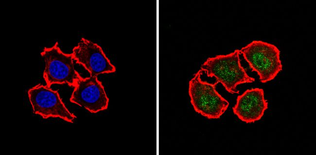 MGMT Antibody (MA5-13503) in Immunofluorescence