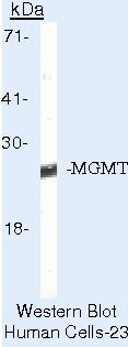 MGMT Antibody (MA5-13506) in Western Blot