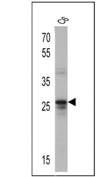 CD81 Antibody (MA5-13548) in Western Blot