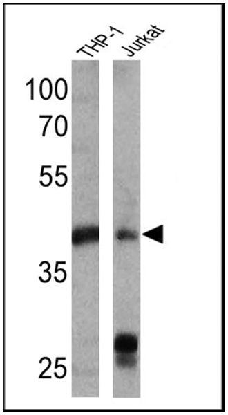 HLA-ABC Antibody (MA5-13582) in Western Blot