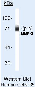 MMP2 Antibody (MA5-13587) in Western Blot