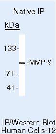 MMP9 Antibody (MA5-13595)