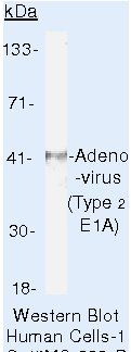 Adenovirus Type 2 Antibody (MA5-13648) in Western Blot