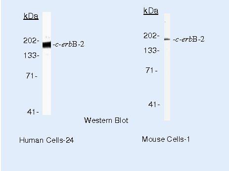 ErbB2 Antibody (MA5-13675) in Western Blot