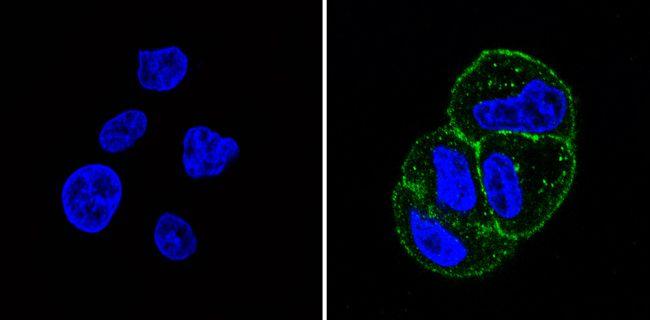 INSR alpha Antibody (MA5-13759) in Immunofluorescence