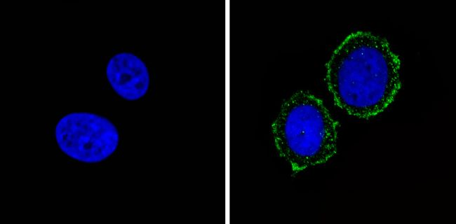 INSR alpha Antibody (MA5-13764)
