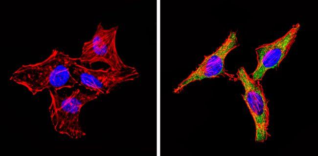 INSR beta Antibody (MA5-13778) in Immunofluorescence