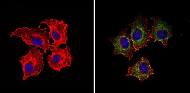 IGF1R alpha Antibody (MA5-13817)