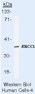 ERCC1 Antibody (MA5-13830) in Western Blot