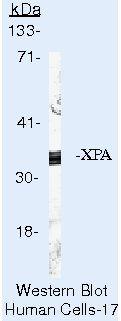 XPA Antibody (MA5-13835) in Western Blot