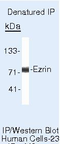 Ezrin Antibody (MA5-13862) in Immunoprecipitation