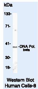 POLB Antibody (MA5-13899) in Western Blot