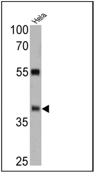 ERCC1 Antibody (MA5-13912) in Western Blot
