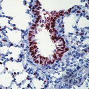Nkx2.1 Antibody (MA5-13958) in Immunohistochemistry