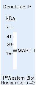 Melan-A Antibody (MA5-14017) in Immunoprecipitation