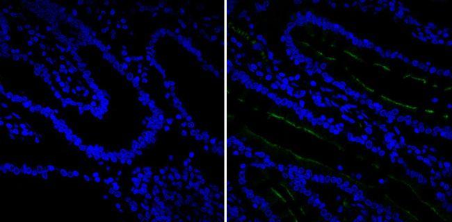 CD10 Antibody (MA5-14050) in Immunofluorescence