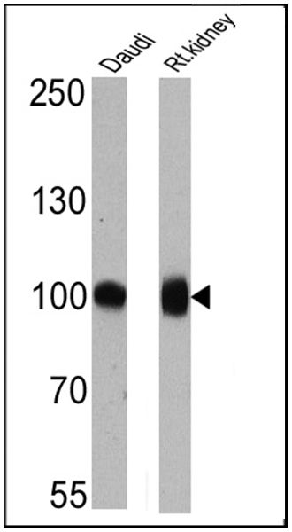 CD10 Antibody (MA5-14050) in Western Blot