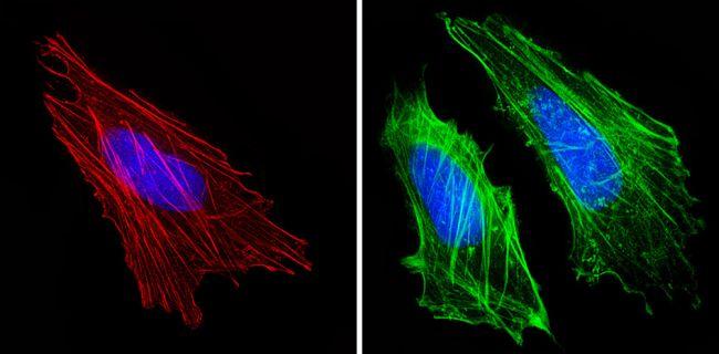 Actin Muscle Antibody (MA5-14084) in Immunofluorescence