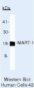 Melan-A Antibody (MA5-14168) in Western Blot