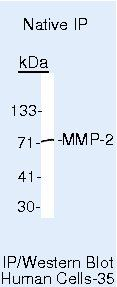 MMP2 Antibody (MA5-14186) in Immunoprecipitation
