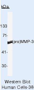 MMP3 Antibody (MA5-14210) in Western Blot