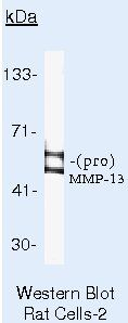 MMP13 Antibody (MA5-14244) in Western Blot