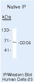 Cdc6 Antibody (MA5-14311) in Immunoprecipitation