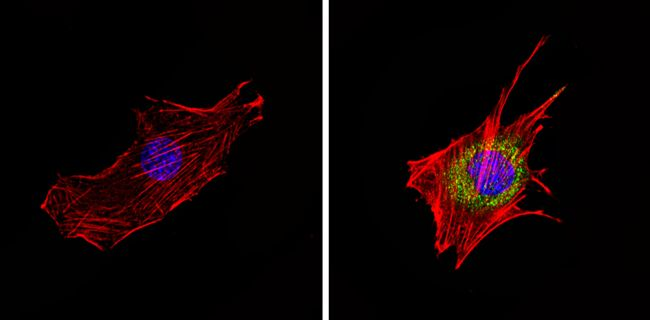 Cyclin B1 Antibody (MA5-14327) in Immunofluorescence