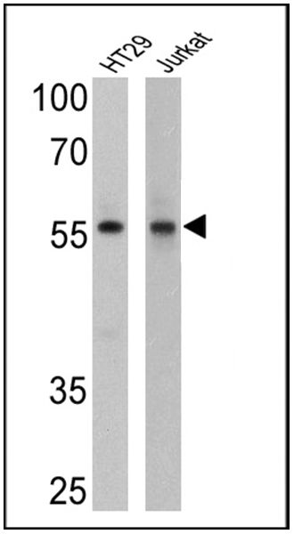 Cyclin B1 Antibody (MA5-14327) in Western Blot