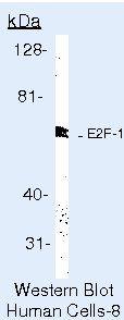 E2F1 Antibody (MA5-14341) in Western Blot
