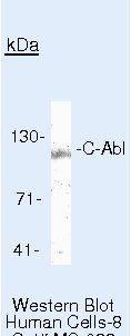 c-Abl Antibody (MA5-14398) in Western Blot