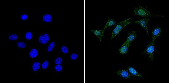 RAD51 Antibody (MA5-14419) in Immunofluorescence