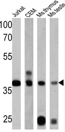 RAD51 Antibody (MA5-14419) in Western Blot