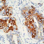 Cytokeratin 8 Antibody (MA5-14425)