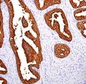 PSA Antibody (MA5-14470) in Immunohistochemistry