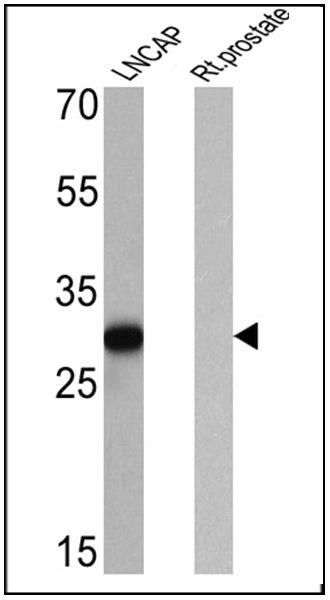 PSA Antibody (MA5-14470) in Western Blot