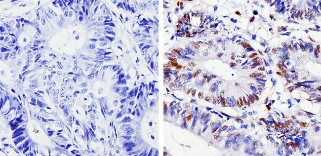Cyclin D1 Antibody (MA5-14512) in Immunohistochemistry (Paraffin)