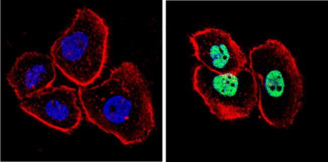 p53 Antibody (MA5-14516) in Immunofluorescence