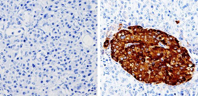 Chromogranin A Antibody (MA5-14536) in Immunohistochemistry (Paraffin)