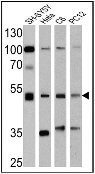 Chromogranin A Antibody (MA5-14536) in Western Blot