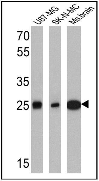 Calretinin Antibody (MA5-14540) in Western Blot