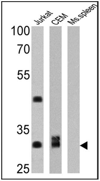 CD8 Antibody (MA5-14548) in Western Blot