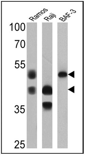 CD79a Antibody (MA5-14556) in Western Blot