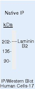 Laminin beta-2/gamma-1 Antibody (MA5-14649) in Immunoprecipitation