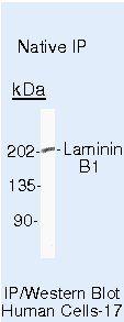Laminin beta-1 Antibody (MA5-14654) in Immunoprecipitation
