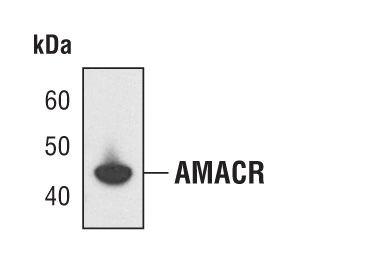 AMACR Antibody (MA5-14793) in Western Blot