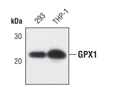 GPX1 Antibody (MA5-14868) in Western Blot