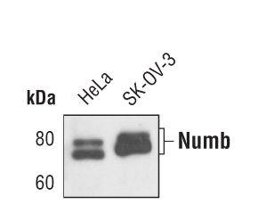 NUMB Antibody (MA5-14897) in Western Blot