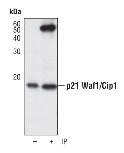 p21 Antibody (MA5-14949) in Immunoprecipitation
