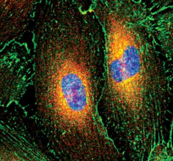 VASP Antibody (MA5-14982) in Immunofluorescence